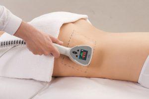 akce liposukce břicha
