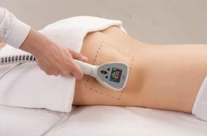 hubnutí s bezbolestnou liposukcí