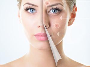 kosmetický salon - akné