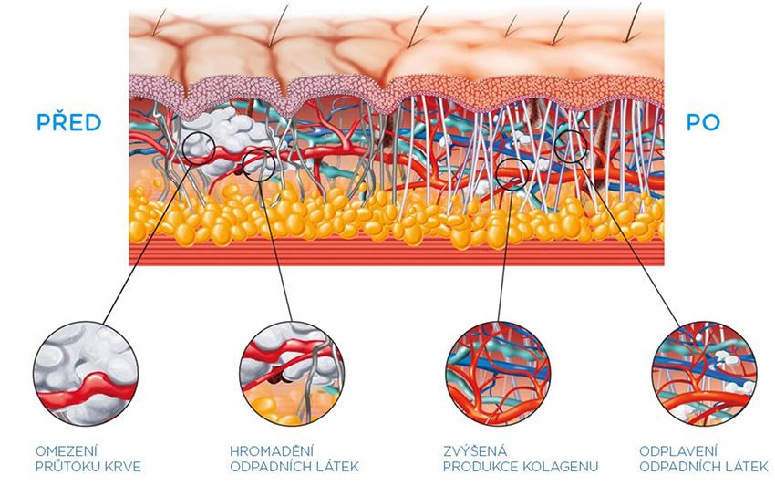 BTL X-WAVE 5000 PRO - funkce na tkáně
