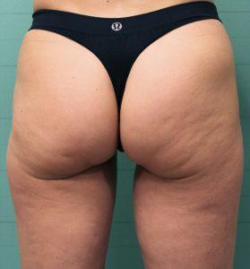 bezbolestná liposukce - před
