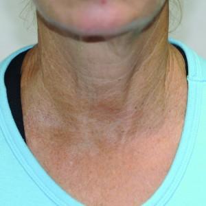 BTL-Elite neck-after