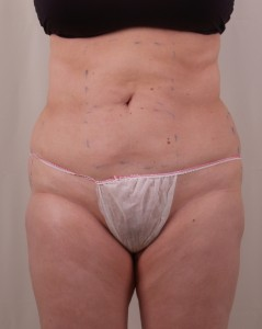 Exilis B&A BELLY After