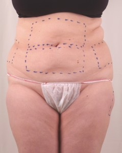 Exilis B&A BELLY Before