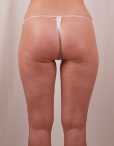 Exilis B&A BUTTOCKS After