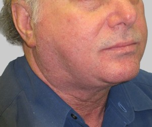 Exilis B&A Loverme submental after