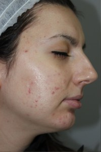 Exilite PIC B&A 011 After