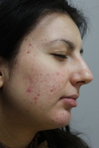 Exilite PIC B&A 011 Before
